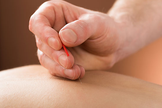 Dry Needling Chapel Hill NC | Dr. Hennenhoefer Osteopathic Musculoskeletal Medicine